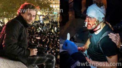 "Photo of الشرطة الفرنسية تعـ.ـتدي بالضـ.ـرب على  صاحب ""جائزة الصورة الصحافية"" المصور السوري ""أمير الحلبي"""